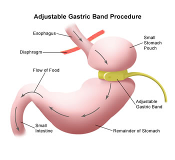 How Does A Gastric Band Work